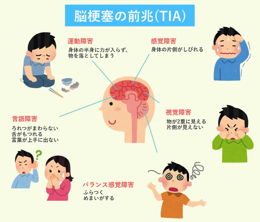 脳梗塞前兆