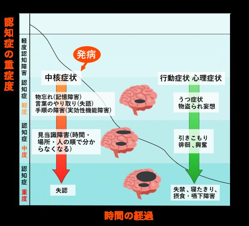 アルツハイマーの進行と症状