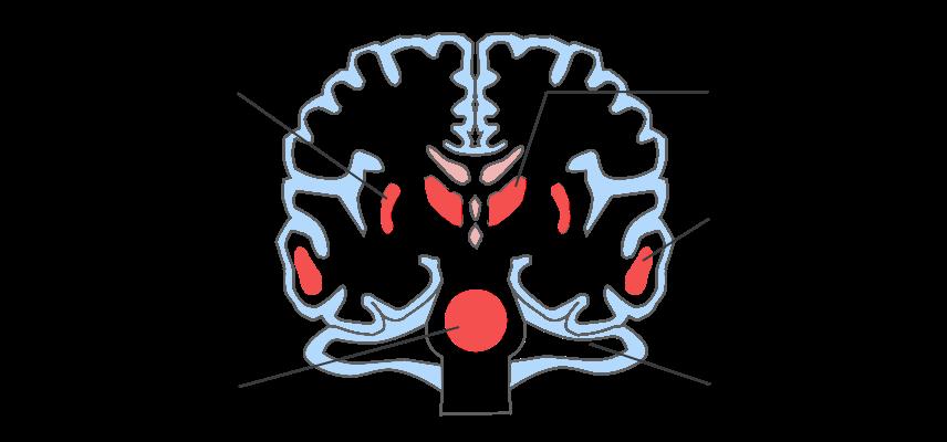脳出血部位