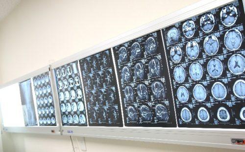 CT,MRI,レビー