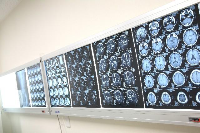 認知症や若年性アルツハイマー病治療