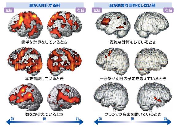 学習療法fMRI