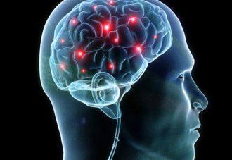 脳血管性認知症