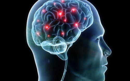 脳卒中の後遺症