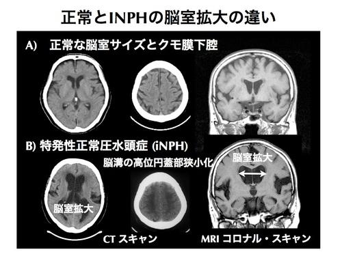 正常圧水頭症画MRI&CT