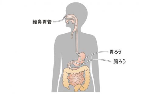 胃ろう、腸ろう、経鼻経管栄養