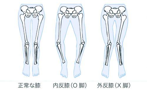 O脚,X脚,内反膝,外反膝