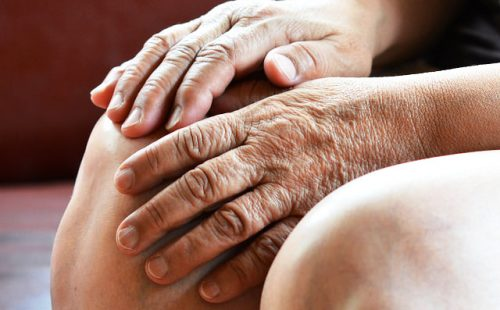 変形性膝関節症の温熱療法
