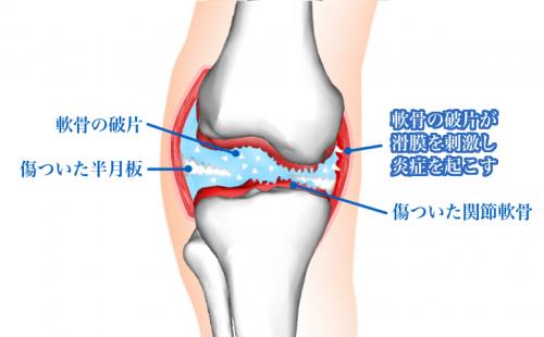 膝関節炎症,破片